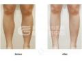 botox注射瘦腿针后会出现肌无力吗