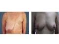 乳房再造对比图2