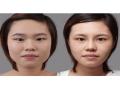 荆州双眼皮手术的方法包括哪些