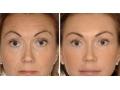 祛眉间纹对比图2