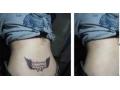 洗纹身对比图1