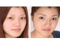 注射隆鼻图片1