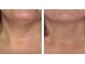 祛颈纹图片1