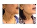 祛颈纹图片2