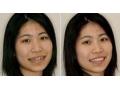 种植牙对比照片1
