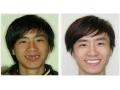种植牙对比照片2