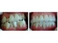 牙齿矫正对比照片2