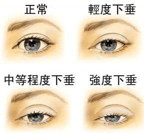 「眼皮下垂」的圖片搜尋結果
