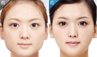 打botox瘦脸针有什么副作用?