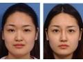 鼻头缩小术有效吗?