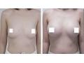 自体脂肪隆胸多少钱?