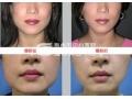 注射瘦脸针可以瘦脸吗?