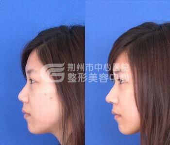 荆州注射隆鼻价格多少钱?