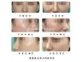 隆鼻的方法有哪些?