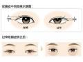 荆州割双眼皮手术危害吗?