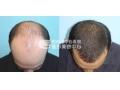 荆州种植头发多少钱?