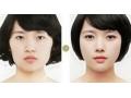 荆州改脸型价格