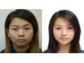 荆州隆下巴能改变脸型吗