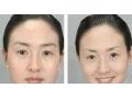 荆州切眉术的过程