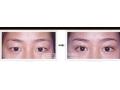 割双眼皮一般需要多少钱?