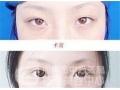 埋线双眼皮恢复快吗?