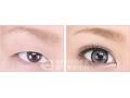 割双眼皮 打造完美眼部曲线