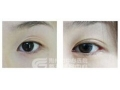 最常用的做双眼皮的方法