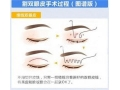 做双眼皮手术可以保持多长时间?