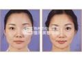 注射瘦脸针瘦脸的优势有哪些呢?