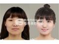 瘦脸针快速瘦脸效果如何
