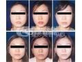 注射瘦脸针的优势有哪些