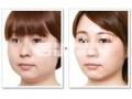 瘦脸针瘦脸,助您拥有精致小脸