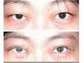 荆州目前双眼皮手术多少钱