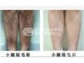 激光脱腿毛的效果如何?