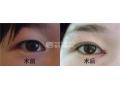 荆州开眼角手术一般需要多少钱?