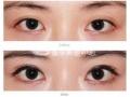 开眼角手术让你的眼睛魅力四射