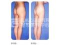 大腿吸脂存在哪些优势