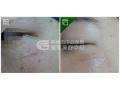 激光祛疤使皮肤达到完美效果