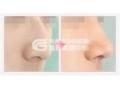 什么是鹰钩鼻矫正手术?