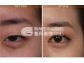 上睑下垂矫正术治疗眼睑松弛还您明亮大眼