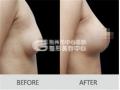 自体脂肪隆胸会留疤吗?