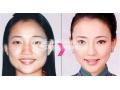 botox瘦脸针的优势