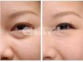 祛眼袋术后护理事项有哪些