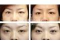 眼袋祛除术后须知的护理常识