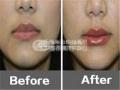 胶原蛋白注射丰唇,美丽双唇更自然