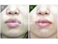 胶原蛋白注射丰唇,打造魅惑丰唇