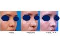 哪些是鼻头鼻翼缩小术的优势