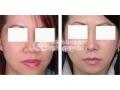 如何进行鼻头鼻翼缩小术