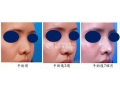 鼻头鼻翼缩小后该如何护理呢
