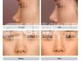 自体软骨隆鼻尖 鼻头雕塑更有型